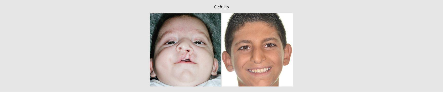 11-lip-surgery-1