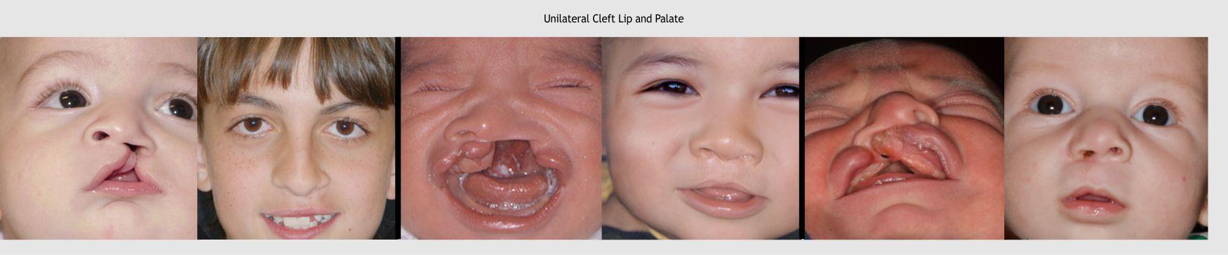 12-lip-surgery-2