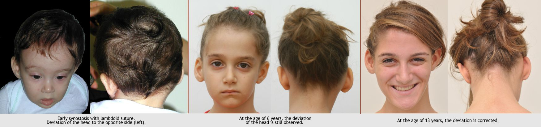 19-plagiocephaly-2