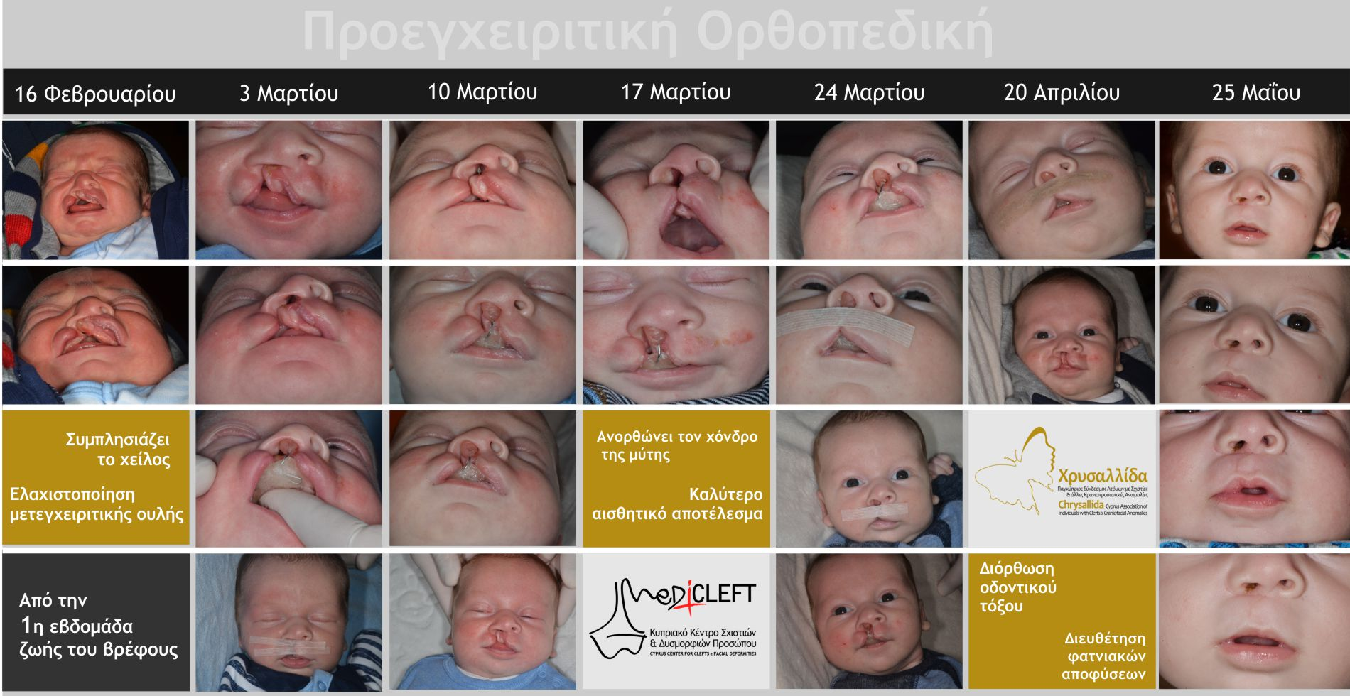 Προεγχειριτική Ορθοπεδική - Προετοιμάζει το βρέφος για την επέμβαση χείλους και μύτης