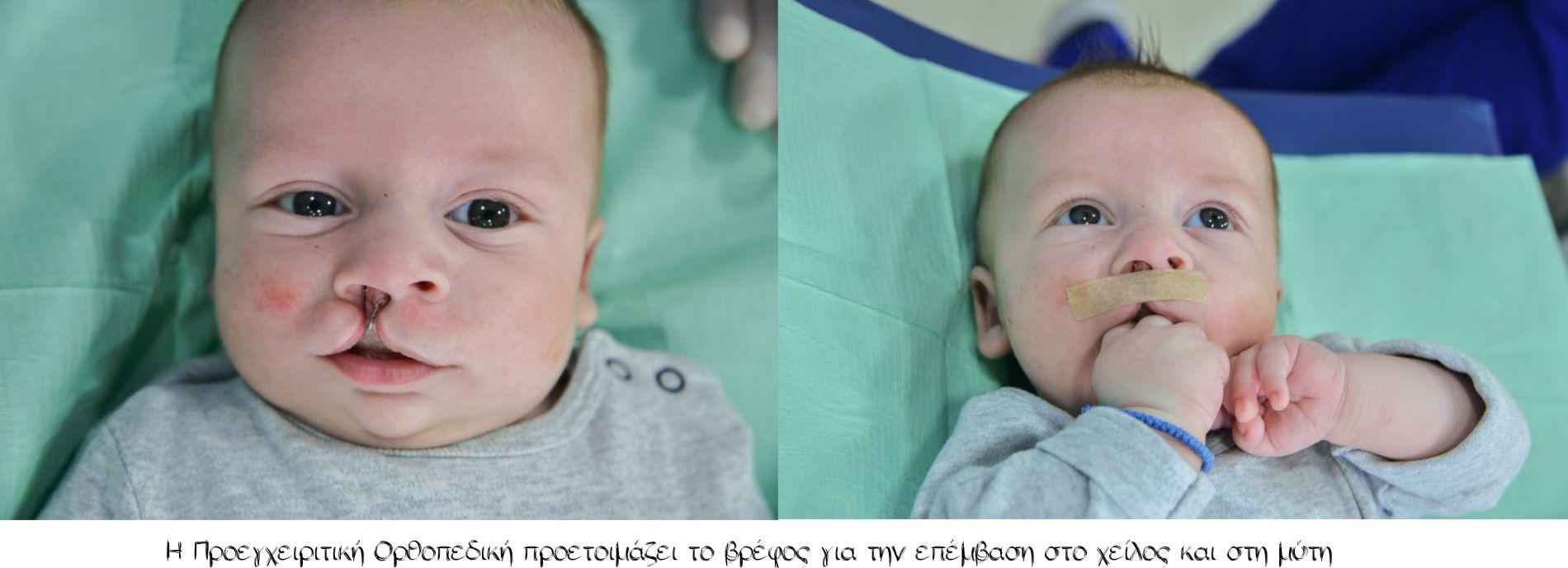 Η προεγχειριτική ορθοπεδική προετοιμάζει το βρέφος για την επέμβαση στο χείλος και στη μύτη