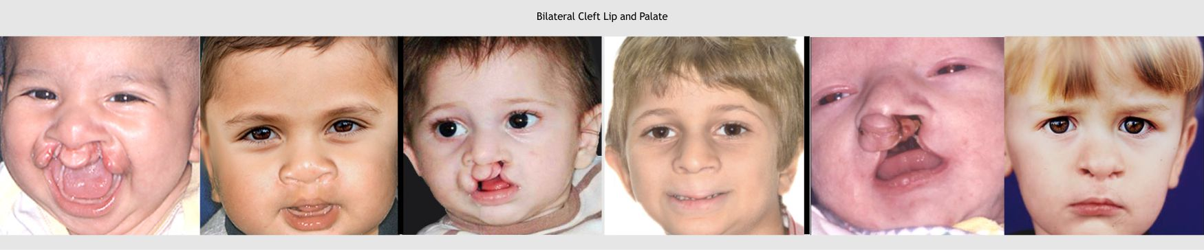 13-lip-surgery-3