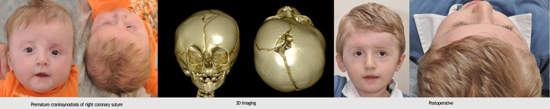 17-craniosynostosis