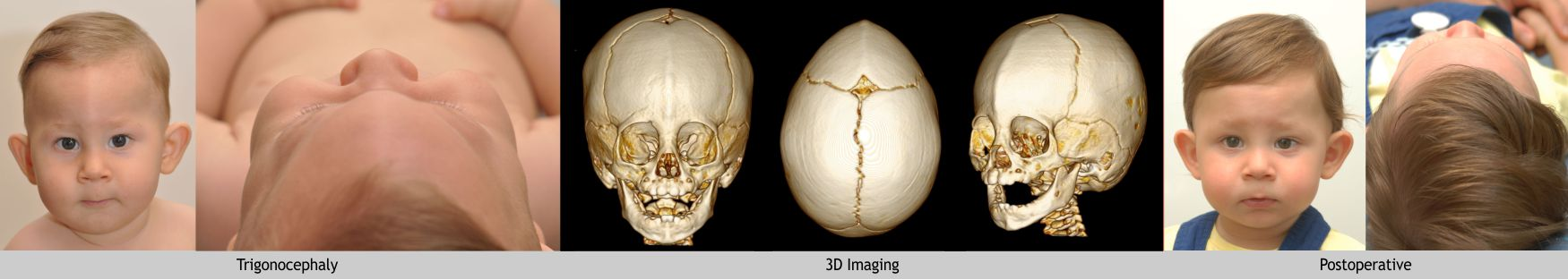 20-trigonocephaly