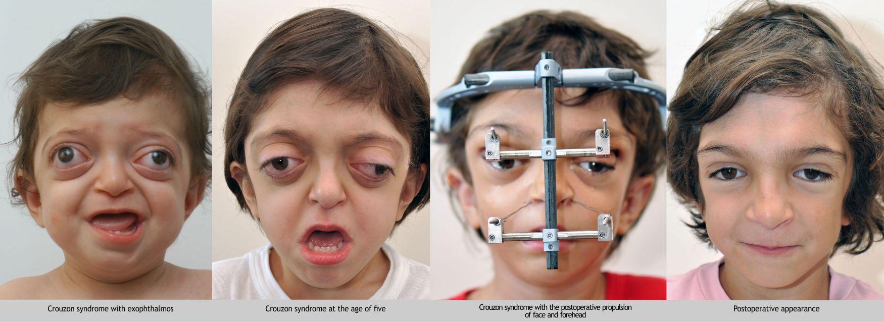 23-crouzon-syndrome