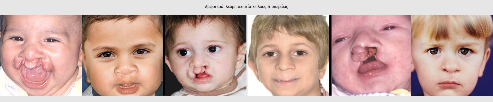 Αμφοτερόπλευρη σχιστία χείλους & υπερώας