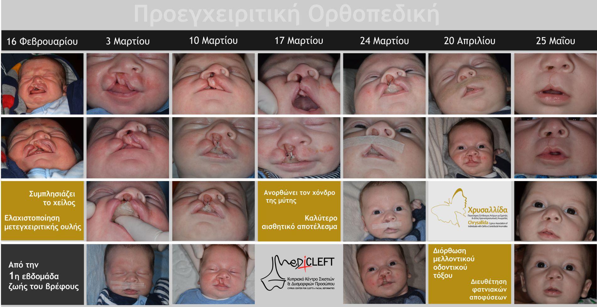 Η προεγχειριτική ορθοπεδική προετοιμάζει το βρέφος για την πρώτη επέμβαση στο χείλος και στη μύτη