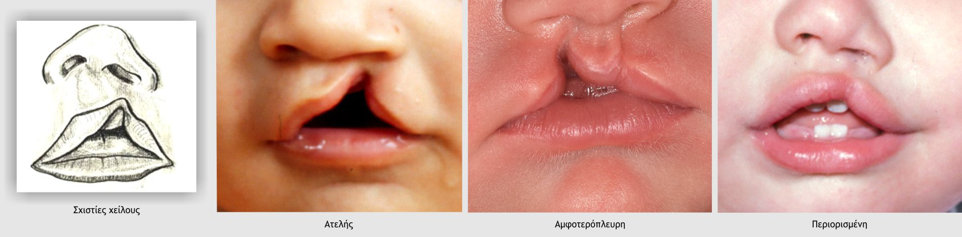 Σχιστίες χείλους
